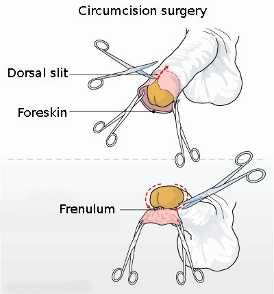 Circumcision illustration